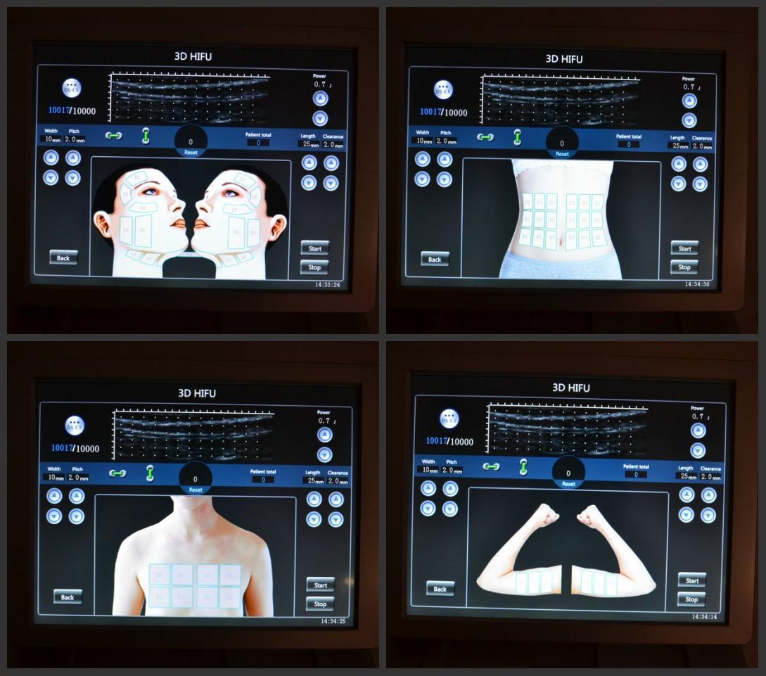 The Best Hifu Machine from China Manufacturer - Newangietech